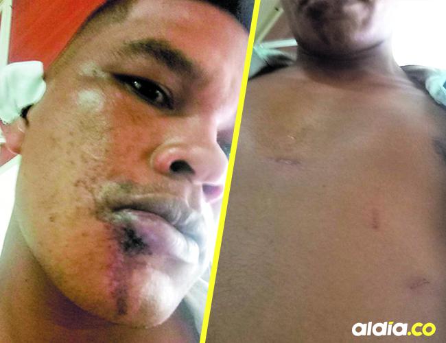 Celso Salazar Orozco fue agredido por sus vecinos en el barrio La Unión en Puebloviejo.