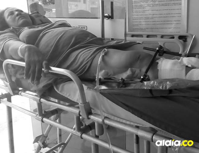 Pura Van Strahlen lleva seis cirugías en sus piernas y con todas las dificultades económicas en este percance.