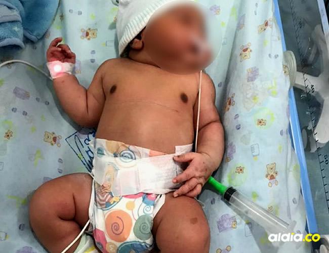 Un bebé, al que sus padres llamarán Isaac David, sorprendió al personal médico de la Policlínica de Ciénaga, tras nacer el sábado con un peso de 6.380 gramos y 55 centímetros de talla | Cortesía AL DÍA
