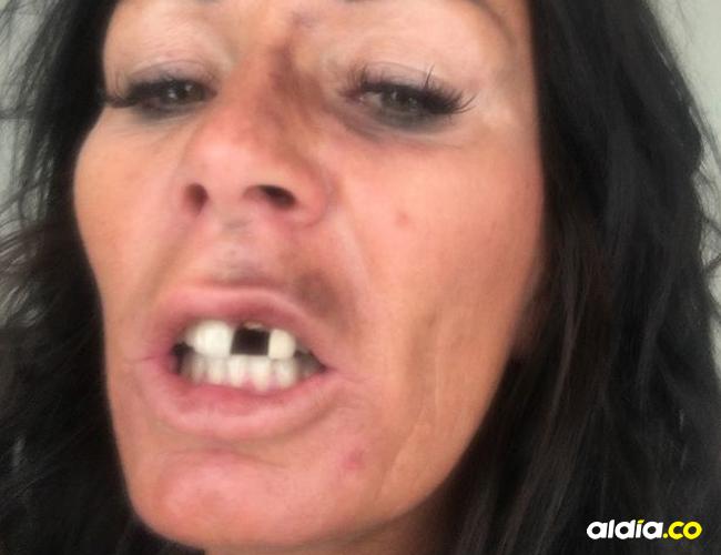 Según la atacante, la mujer había estado haciéndole señales extrañas a su esposo   Al Día
