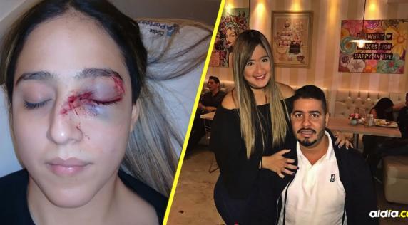 Así quedó Daniela Ahumada Comas tras ser golpeada con un computador portátil por Mateo Cabrera Urueta. | Al Día