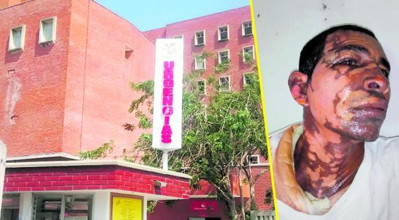 Pedro José Vanegas Jiménez fue llevado al hospital Fernando Troconis con quemaduras en el rostro y el cuerpo, después que su pareja lo bañara con agua hirviendo en una discusión   José Puente