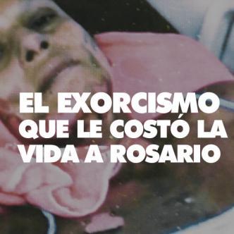 Esta foto muestra las quemaduras que sufrió Rosario María Acuña Campo, se la tomaron unos días antes de que muriera.| AL DIA