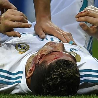 El astro portugués quedó visiblemente cubierto de sangre, tras un golpe involuntario de un defensor rival | AFP