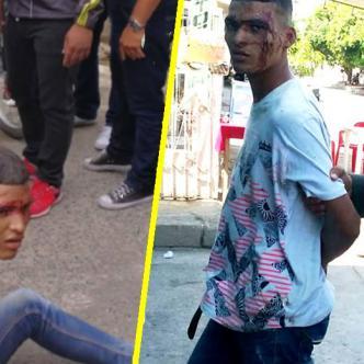 Ismael Acosta Jinez, conocido como el Mocho, fue golpeado por la comunidad.   Al Día