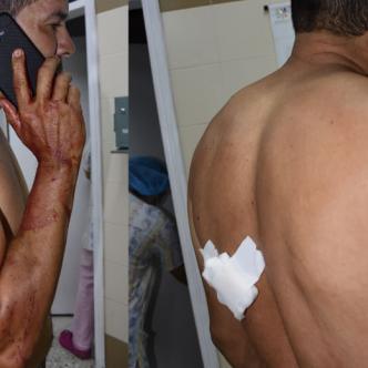 A los médicos le preocupa la herida que tiene en la espalda.