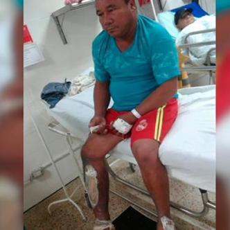 Permanece en el hospital Rosario Pumarejo de López de Valledupar. | Al Día