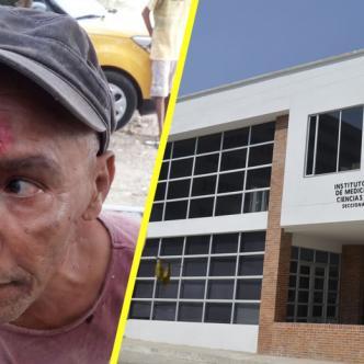 Arnol Espriella, de 60 años fue agredido brutalmente.