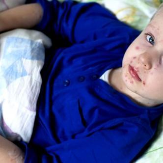 Conozcan el abecé del sarampión: principales afectados, síntomas y cómo prevenirlo | Vite