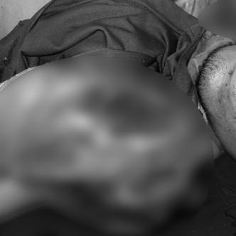 En el desespero por proteger la cabeza, el joven metía las manos   ALDÍA